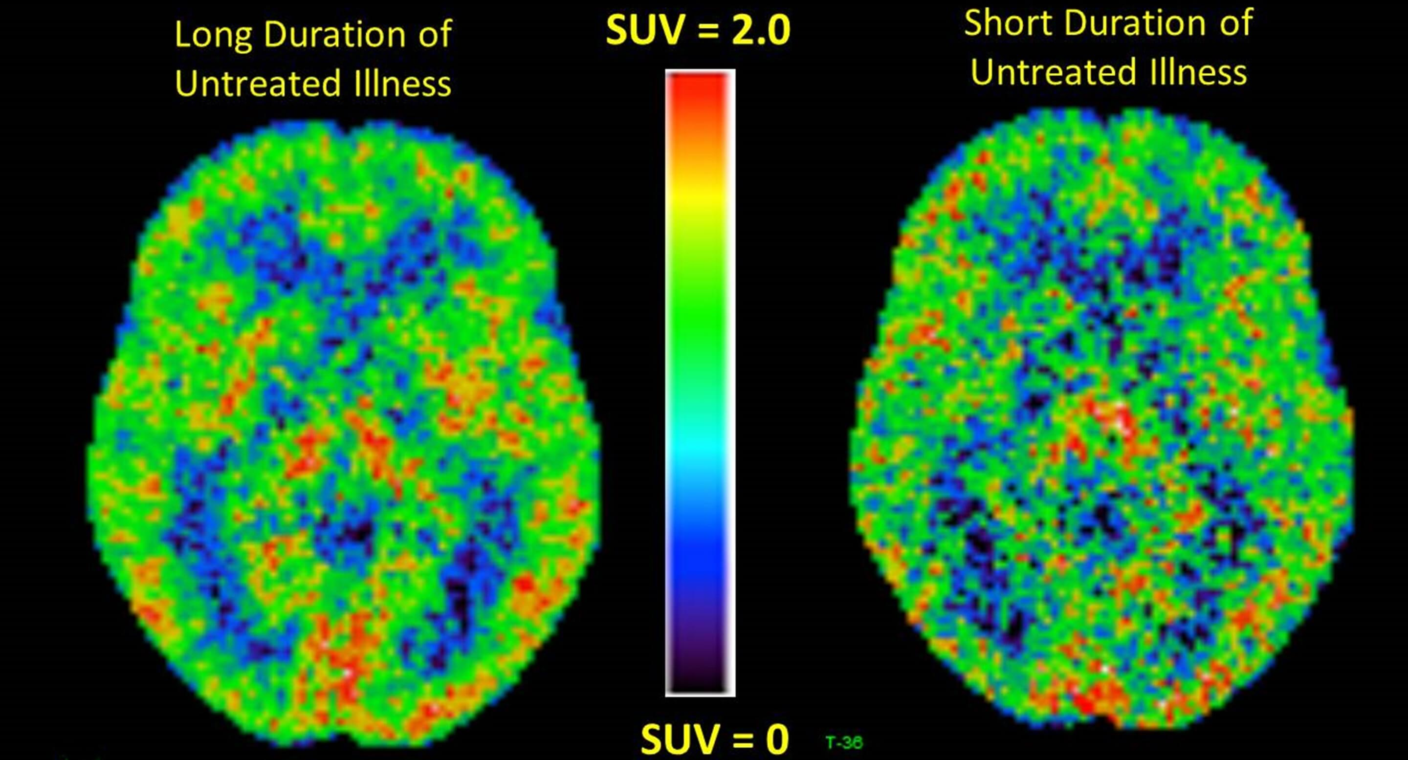 Positron emission tomography (PET) brain scans in people with long or short durations of depression