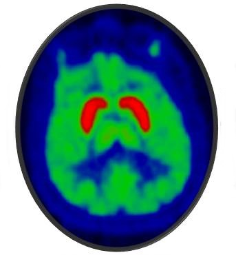 A positron emission tomography (PET) image of the human brain